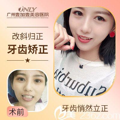 广州壹加壹牙科苏文新做的隐形牙齿矫正案例
