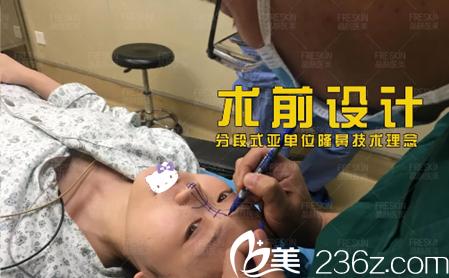 分段式隆鼻技术理念进行术前设计