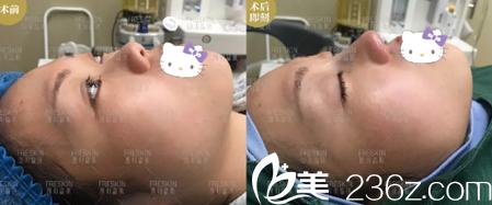 成都晶肤鼻综合术后即刻对比