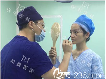 广州积美彭雷医生脂肪填充术前画线设计