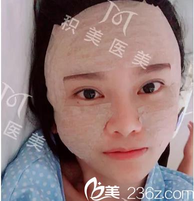 在广州积美做完脂肪填充术后即刻效果图