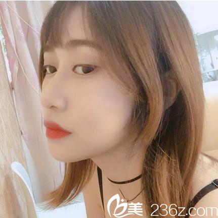 广州积美线雕隆鼻恢复过程图