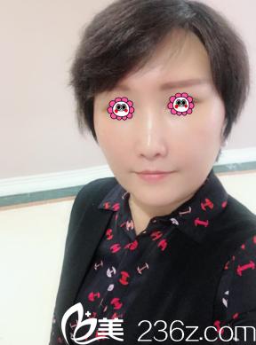 北京玲珑梵宫医疗美容医院高春红术前照片1