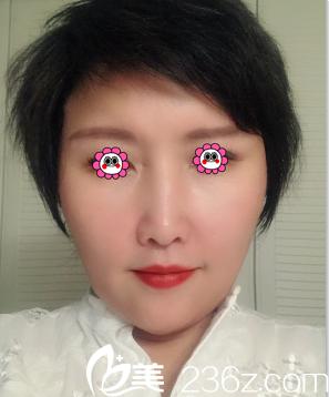 北京玲珑梵宫注射丰嘟嘟唇案例