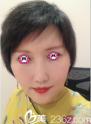 核实北京玲珑梵宫地址电话后我找高春红做了玻尿酸丰嘟嘟唇