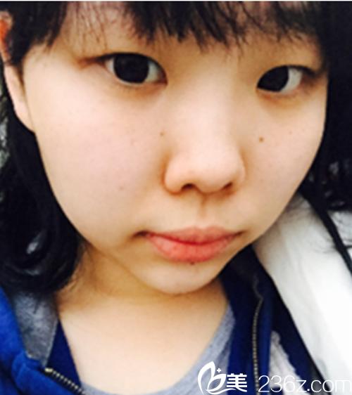 韩国ID整形医院朴相薰术前照片1