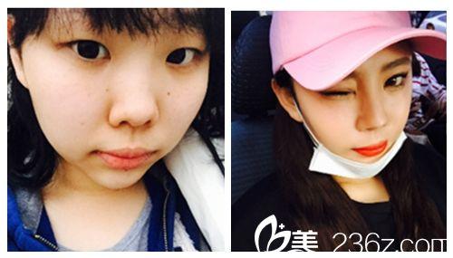 韩国ID医院微创全切双眼皮术前术后对比图
