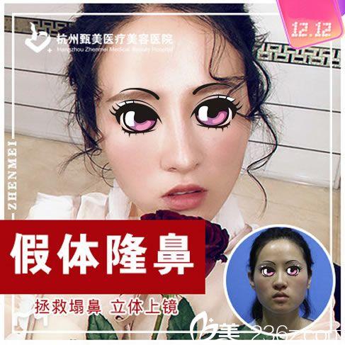 浙江做隆鼻手术的价格是多少钱?杭州甄美王辉和黄江主刀硅胶隆鼻手术费用2800元起