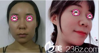 北京知音蕊丽现卓颜蕊丽李文波面部自体脂肪填充案例