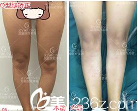 北京知音蕊丽现卓颜蕊丽赵禹翔O型腿矫正案例
