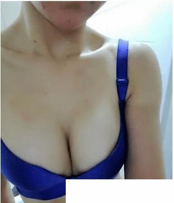 自体脂肪隆胸后应该20天