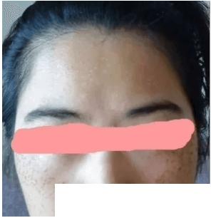 激光祛斑后一周