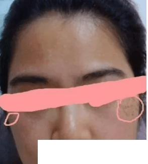 激光祛斑后15天