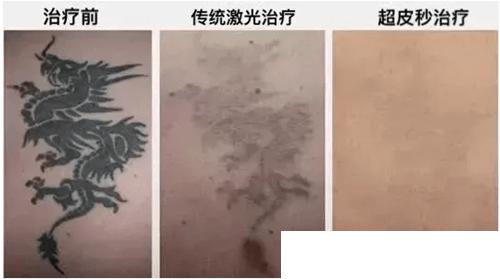 宜春天泽整形医院祛除纹身案例