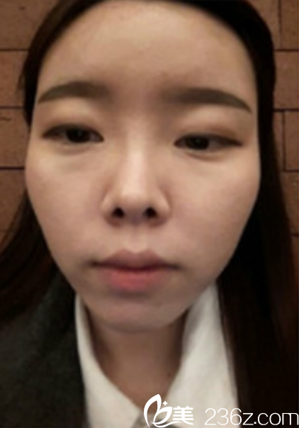 韩国新帝瑞娜(灰姑娘)整形外科洪淳旻术前照片1