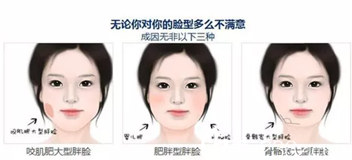 肥胖的三种脸型