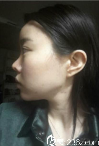 韩国新帝瑞娜面部轮廓+鼻修复手术术前