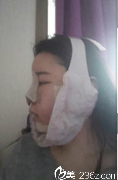 韩国新帝瑞娜面部轮廓+鼻修复手术术后第2天