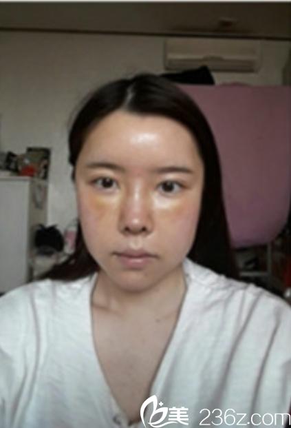 韩国新帝瑞娜面部轮廓+鼻修复手术术后第7天