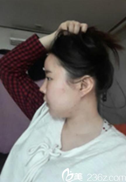 韩国新帝瑞娜(灰姑娘)整形外科洪淳旻术后照片1