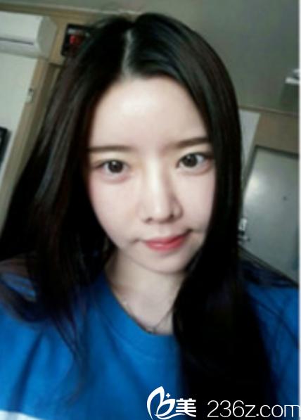 韩国新帝瑞娜面部轮廓+鼻修复手术术后第30天
