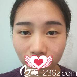 大连董萍整形美容医院董涛术前照片1