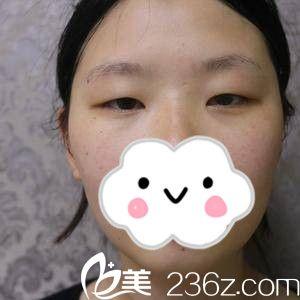 衡阳摩姿医疗美容医院黄贵兴术前照片1