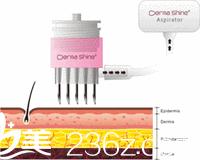 仪器刺激皮肤