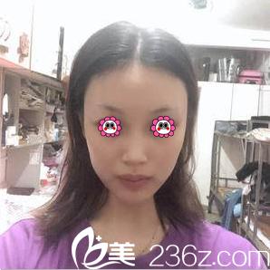 北京京通医院美容科陈莉术前照片1