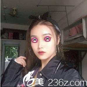 在北京京通整形医院做假体隆鼻第27天效果