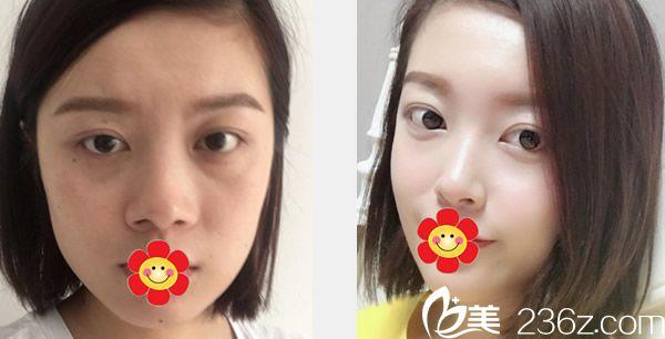 五洲王焕医生玻尿酸丰面颊+自体软骨综合隆鼻前后效果对比图