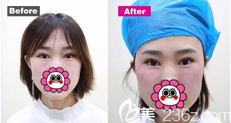 北京华韩无创溶脂祛眼袋+4D抗衰矩阵来袭!祁慧敏让您尊享美丽!