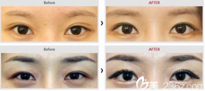美夏林眼部整形对比案例