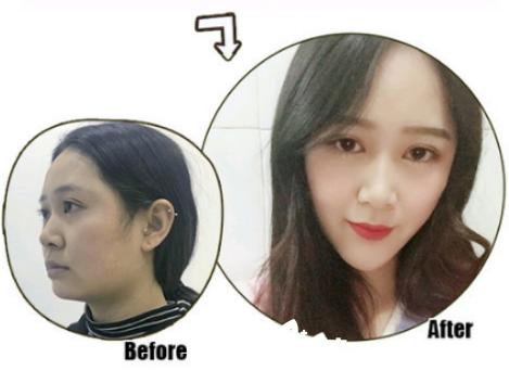 广州肤康皮肤科医院线雕埋线提升案例
