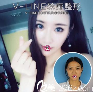 北京南加整形磨骨瘦脸多少钱?公布何照华V-LINE整形套餐价格和案例