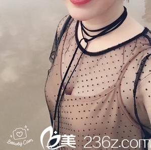 找北京南加门诊部张清峰花三万余做了自体脂肪丰胸我喜欢这效果