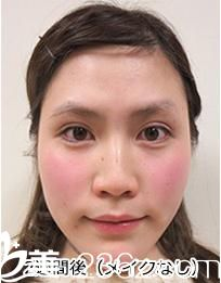 讲讲我在品川美容外科医院找照屋智医生的天然法埋线双眼皮,真的是天然去雕饰