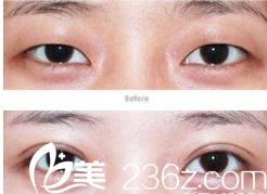 西安诺颜征集你的双眼皮修复整形经历,排名前3名送1000元优惠券