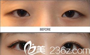双眼皮不对称修复案例