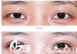 初次双眼皮整形案例对比图