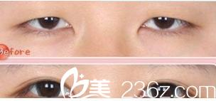 眼睛大小不一致修复案例