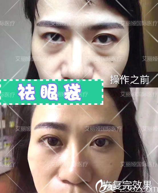 杭州艾丽娅祛眼袋案例效果