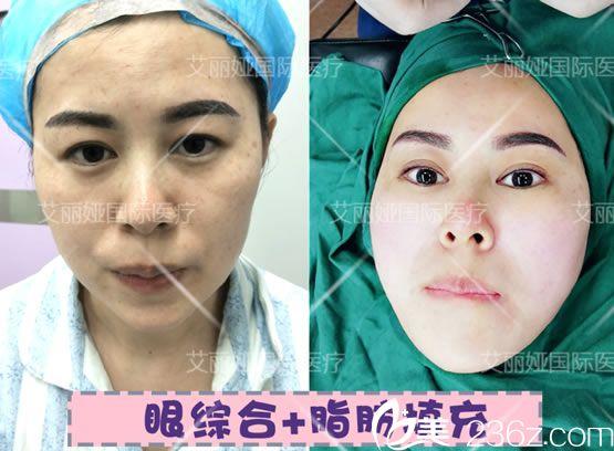 杭州艾丽娅眼综合和脂肪填充案例