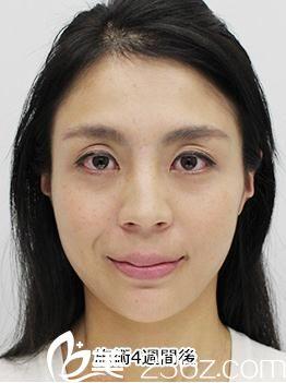 在日本品川美容外科,照屋智医生为我做的面部埋线提拉让我重返年轻面庞