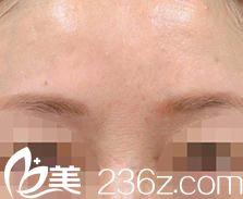怎么消除川字纹--日本的品川美容外科的小池康弘医生通过注射瘦脸除皱让我愁眉舒展