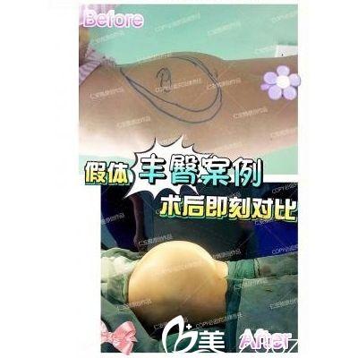 深圳仁安雅苗春来做的假体丰臀案例