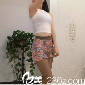 北京南加腰腹吸脂案例