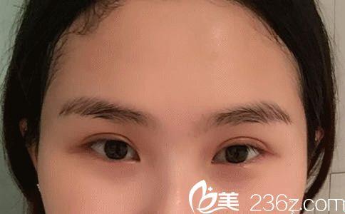 半年前找孙家明做的双眼皮已经恢复到自然无痕很漂亮 分享出来让大家感受下武汉协和实力