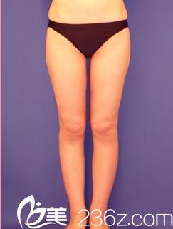 如何瘦大腿?日本城本医疗美容医院的小川英朗为我做了大腿吸脂,让我彻底告别了大象腿
