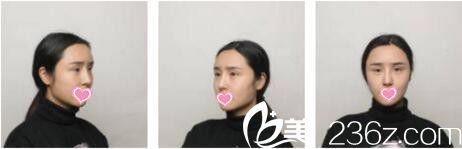 上海鲁南整形医院于景浩眼修复真人案例术前照